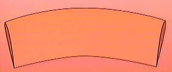 Peau coupée lors de la circoncision