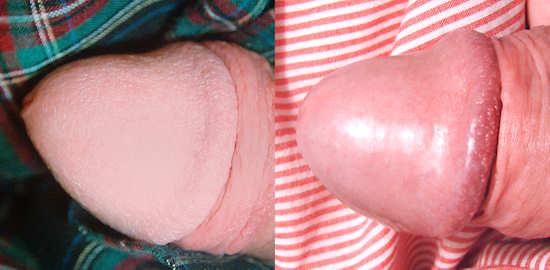 Comparaison avant après d'un sexe circoncis restauré