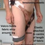 Méthode t tape pour restaurer son prépuce