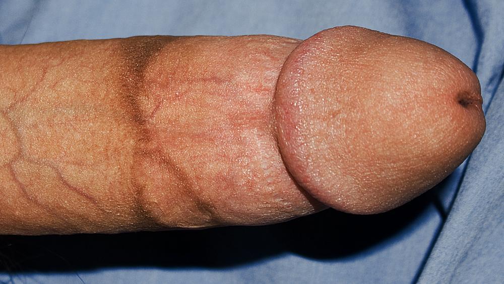 Pénis circoncis, cicatrice haute