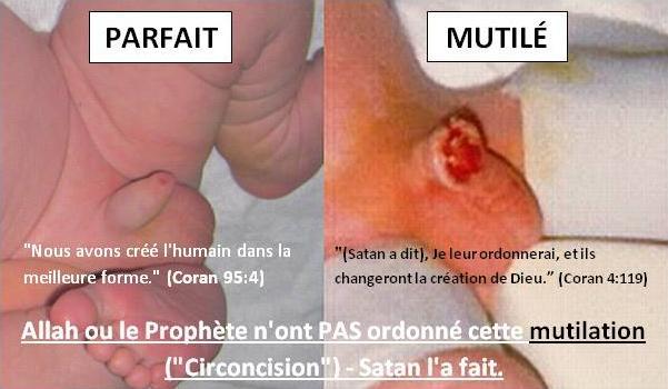 La circoncision en Islam a été ordonnée par Satan