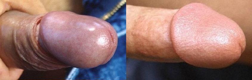 Comparaison de la texture du gland entre un pénis circoncis et intact
