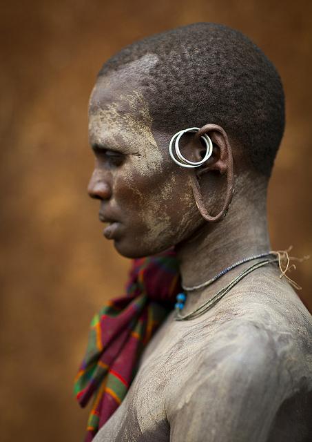 Etirement de la peau de l'oreille