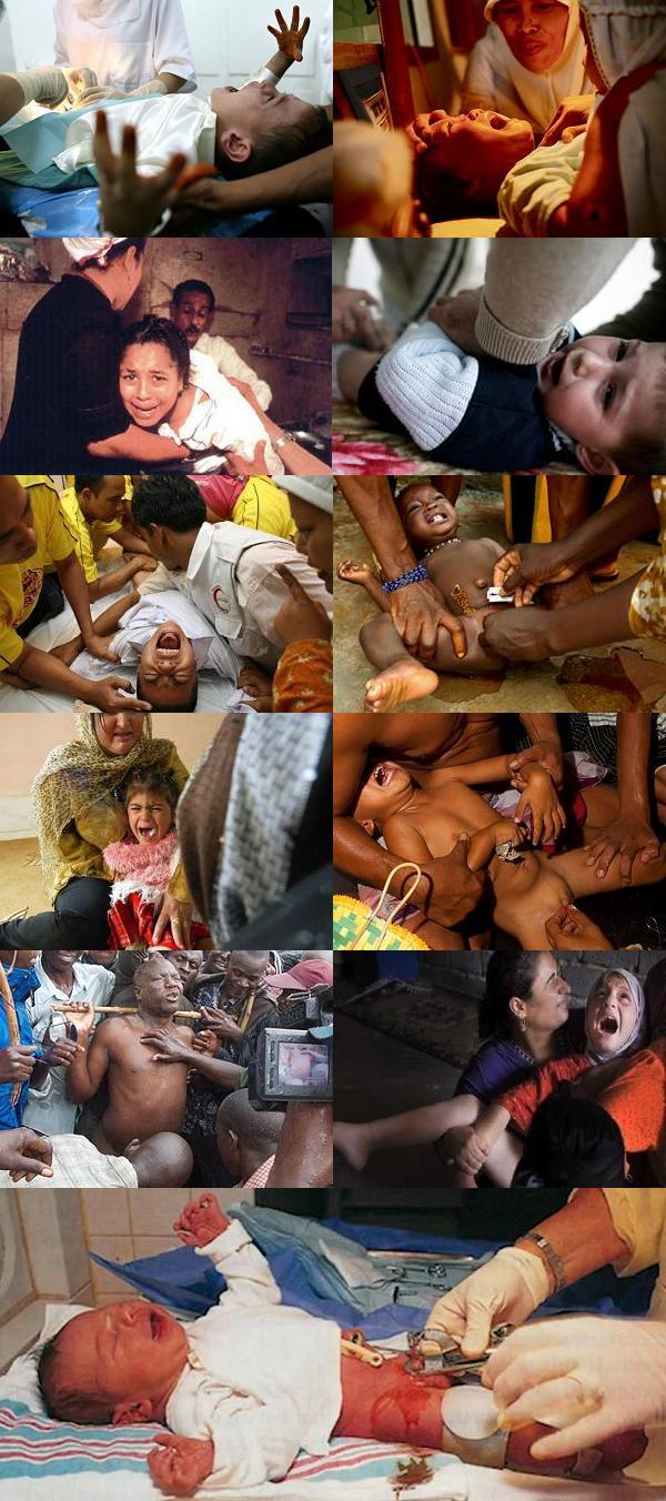 Mutilation génitale d'hommes et de femmes