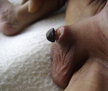 Nécrose du gland du pénis après circoncision