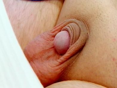 Pénis caché après circoncision