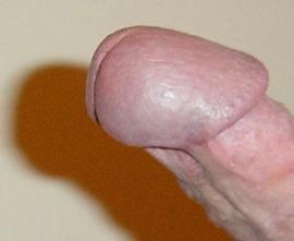 Pont de peau sur un pénis circoncis