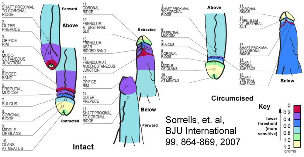 Etude de Sorrells sur la sensibilité du prépuce 2007