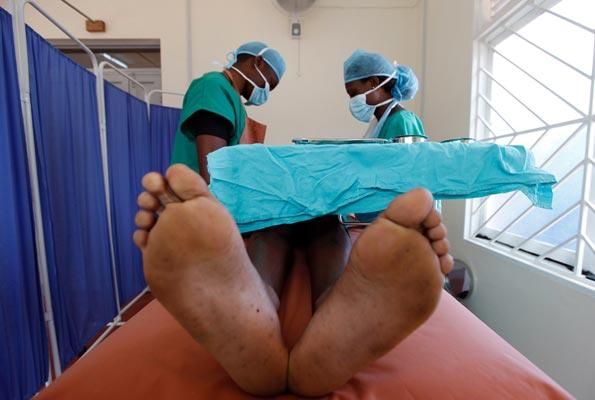 Circoncision médicale
