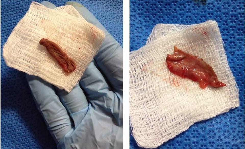 Le prépuce d'un bébé après circoncision