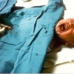 Circoncision d'un bébé qui hurle de douleur