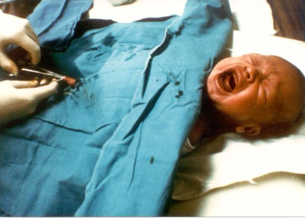 Circoncision photo