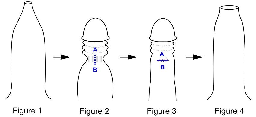 plastie-duhamel-preputioplastie-traitement-phimosis