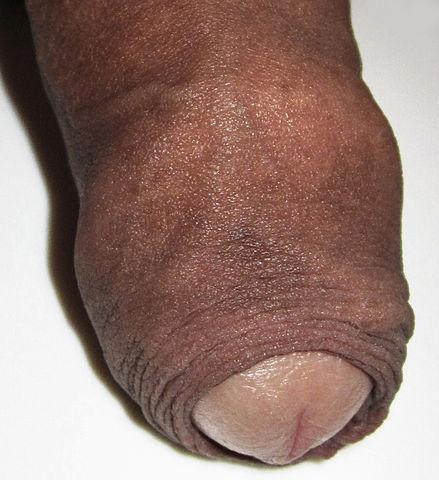 Photo d'un prépuce qui recouvre le gland d'un pénis