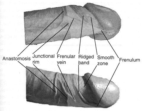 Delta frénulaire mis en évidence sur un pénis au prépuce rétracté