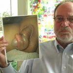 L'avocat John Geisheker montre une photo d'un paraphimosis provoqué par un décalottage forcé